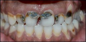 Esthetic restoration of grossly decayed teeth Before