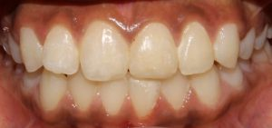 Replantation of tooth post trauma After