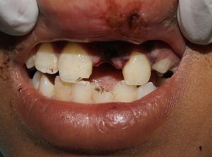 Replantation of tooth post trauma Before