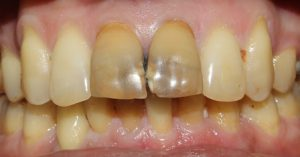 Tooth Bleaching After