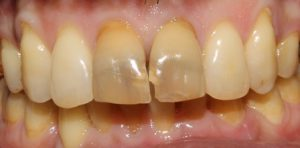 Tooth Bleaching Before