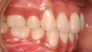 correction of irregular teeth after