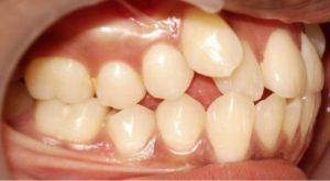correction of irregular teeth before