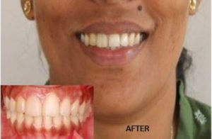smile esthetics after